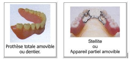 Durée de vie d'une prothèse dentaire amovible