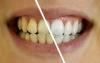 Les astuces de grand-mère pour avoir des dents blanches