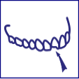 Dent cassée ou fissurée | Solutions
