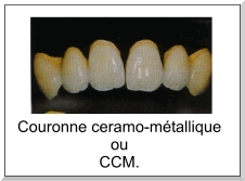 Les Céramo-métalliques