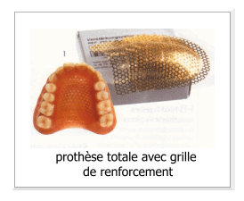 dentier grillage palais renforcé