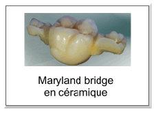 Maryland bridge en céramique