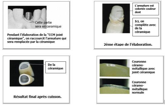 joint dent céramique prothèse